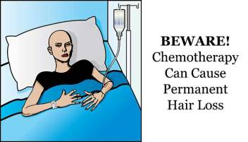 chemotherapy-hair-loss