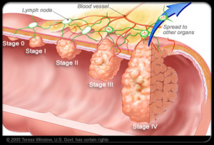 colorectal_cancer_s10_colorectal_cancer_stages