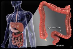 colorectal_cancer_s1_illustartion_of_colon-1