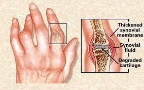 artritis1.jpg