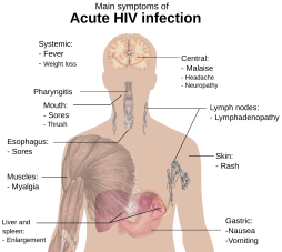 2000px-Symptoms_of_acute_HIV_infection.svg