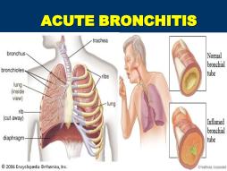 acute b