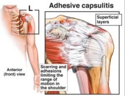 adhesive-capsulitis-edited--300x230
