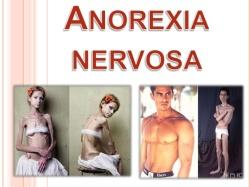 anorexia-nervosa-1-728