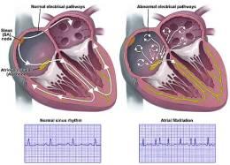 arrhythmia-atrial-fibrillation