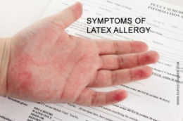 Symptoms-of-latex-allergy-300x199