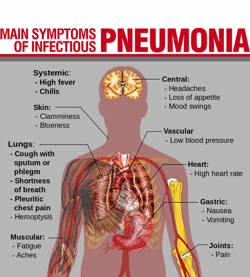 pneumonia | your guide to health & wealth, Human body
